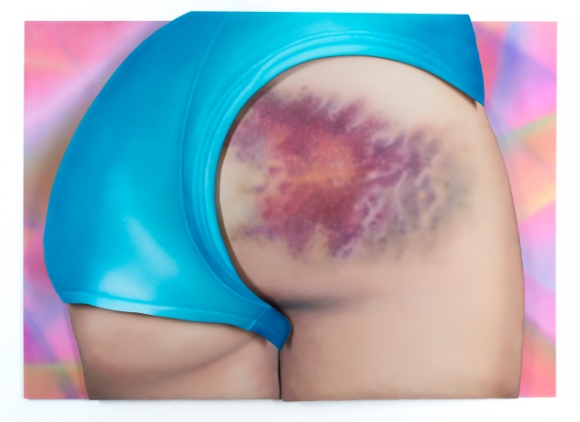 I Got a Really Beautiful Bruise on My Bum, Do You Want To See a Pic It Has 12 Colours And Is the Size of My Head! by Riikka Hyvönen